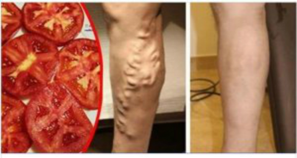 У меня были ноги, наполненные варикозными венами, доктор посоветовал мне использовать помидор таким образом