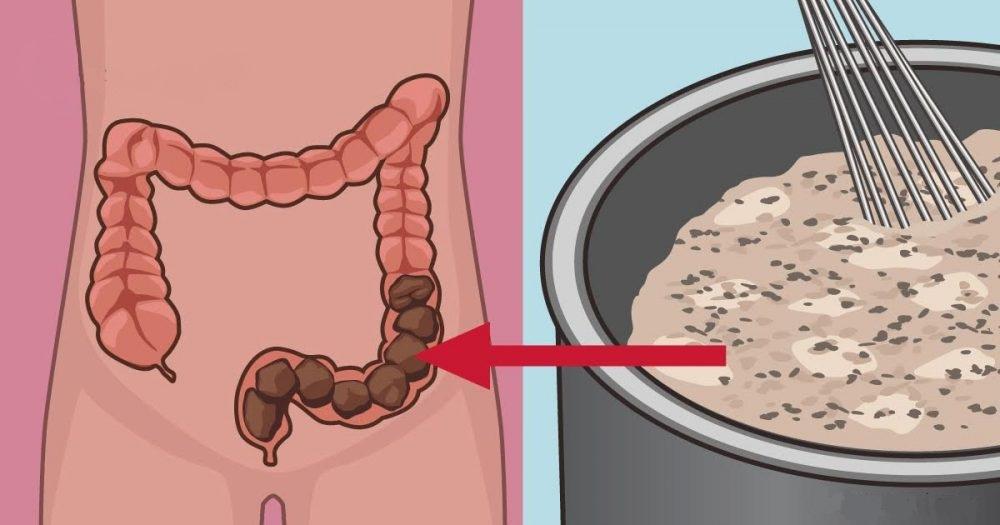Домашнее очищение кишечника, которое очистит ваш организм от токсичных отходов!