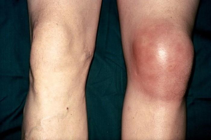 Как избавиться от болей и отека в коленях? Даже если тебе далеко за 70лет!