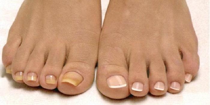 Как избавиться от микоза ногтей легко и быстро? Эффективный метод!
