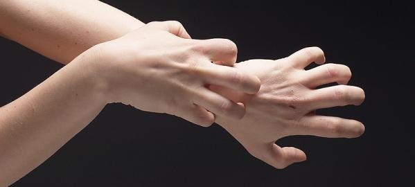 Трескается кожа на руках? Причины и лечение